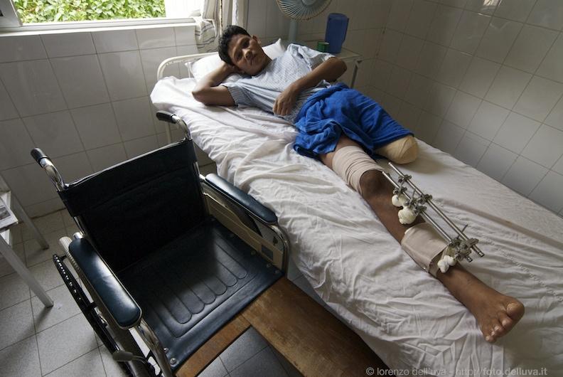 Ospedale Emergency a Battambang (Cambogia) 3